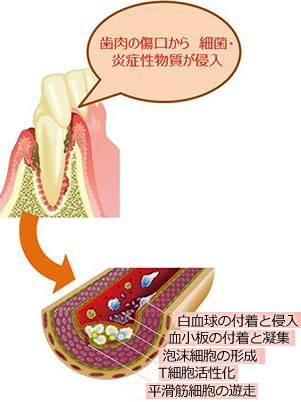 歯肉の傷口から細菌・炎症性物質が侵入